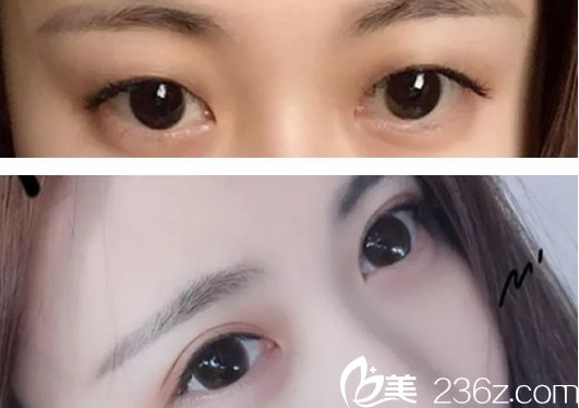 赤峰康华割双眼皮前后效果对比案例