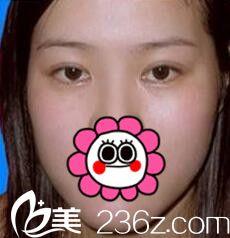 求问济源王艳萍做双眼皮怎么样?分享我手术后效果太自然