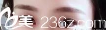 4月27日在济南美尔雅整形美容诊所高燕医生处做的全切双眼皮手术,没开内眼角,价格5500