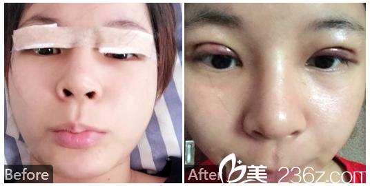 广州苏亚妍雅整形美容医院钟学成做的双眼皮案例效果图