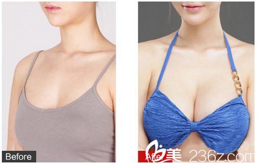 广州苏亚妍雅医疗美容整形医院钟学成自体脂肪隆胸案例对比图