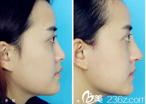 广州苏亚妍雅医学美容医院钟学成耳软骨鼻综合隆鼻案例