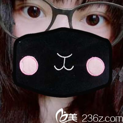 分享合肥壹美尚叶冠青给我做双眼皮的真实经历 不同于一般人的眼综合恢复过程