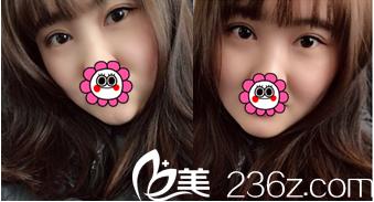 给你看我在北京禾美嘉整形医院做切开双眼皮+开眼角术后65天效果