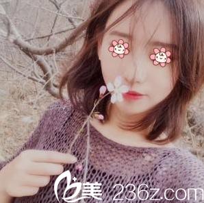 重庆联合丽格整形医院朱红振做的自体脂肪丰脸颊+丰泪沟存活率是真高!