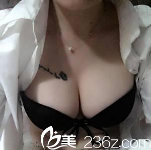 自从重庆星宸整形医院彭绍宗给我做了自体脂肪隆胸简直爱呆了穿泳衣!