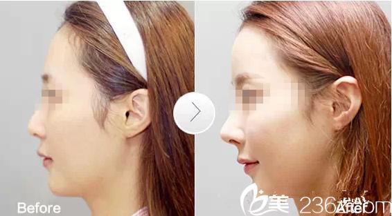 自体软骨隆鼻前后对比