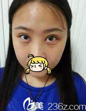 许昌整形医院韩式微创双眼皮手术真人体验 术后让我变身清新大眼萌妹子