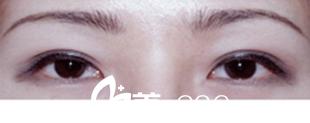 案例分享 看我找长春张志田电眼芭比翘睫双眼皮后变身气质女神