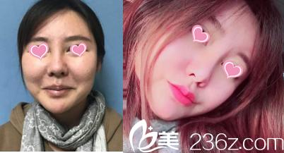 北京美联臣玻尿酸丰唇珠案例