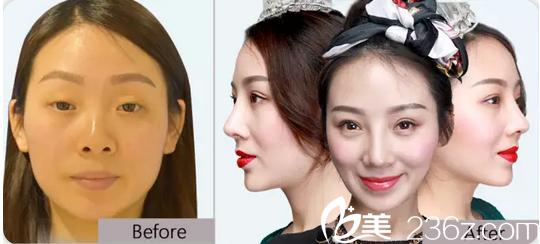 茂名华美整形美容医院于海生鼻综合隆鼻前后对比图