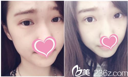 江西广济整形为小妍打造自然型双眼皮,造就烂漫电眼