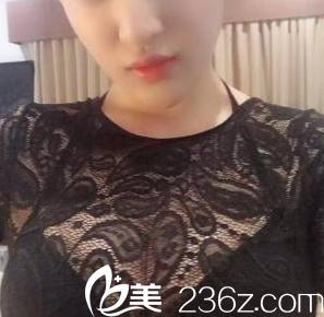 自从我在北京禾美嘉医院找任学会做自体脂肪丰胸后也有乳沟了