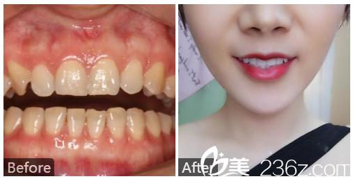 广州壹加壹整形美容医院苏文新做的牙齿瓷贴面真人案例