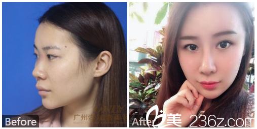 广州壹加壹整形美容医院李明自体耳软骨鼻综合隆鼻案例图