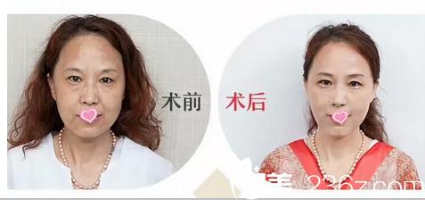 老公说我在北京爱斯克找孙玮骏做速拉美面部提升后皮肤光泽又弹性