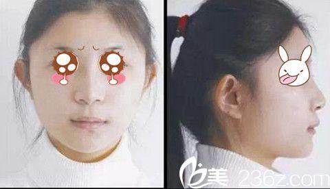 爱美妹子看我在商丘唯美找蒋兴貌院长做注射隆鼻全过程 用的是韩国伊婉玻尿酸
