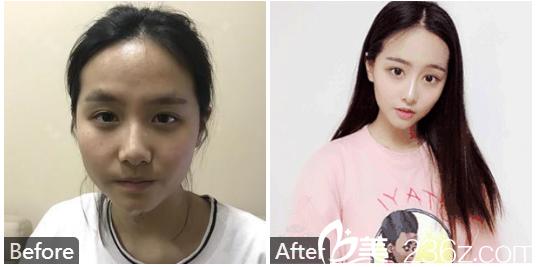 深圳蒳美迩整形医院朱灿做的鼻综合隆鼻子案例对比图