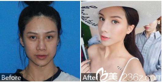 深圳蒳美迩整形医院黄海彬双眼皮失败修复案例图片