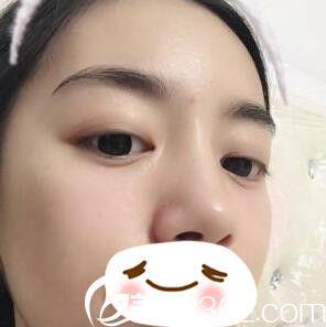 找沈阳碧航医疗美容孙长青做无痕祛眼袋术后一个月让我轻松摆脱烦人的眼袋