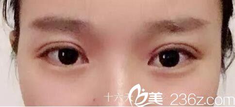 颜值说话 大家看我在南阳时光找杜磊医生做的双眼皮到底值不值?