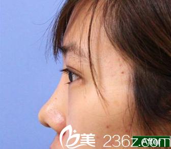 做双眼皮会留疤?来看看我在长春卓研做韩式无痕双眼皮手术的效果