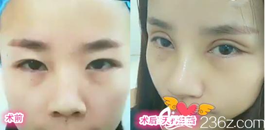 安徽合肥美舒雅全切双眼皮眼综合+假体隆鼻鼻综合术前术后对比照片