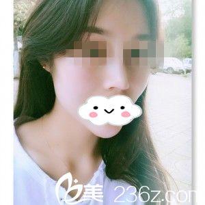 分享我在株洲韩美整形美容医院假体隆鼻+垫下巴一个多月的恢复过程