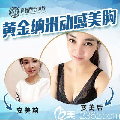 东莞君熠医美刘伟杰做的自体脂肪隆胸案例对比图