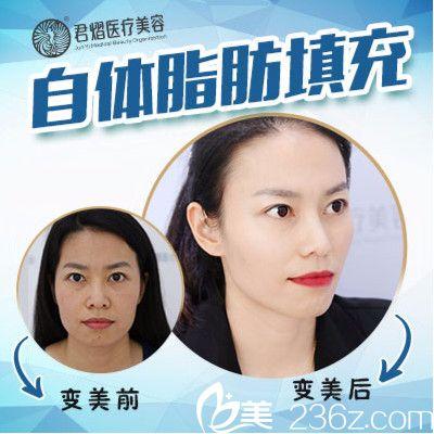 东莞君熠医美刘伟杰做的自体脂肪全脸填充案例图