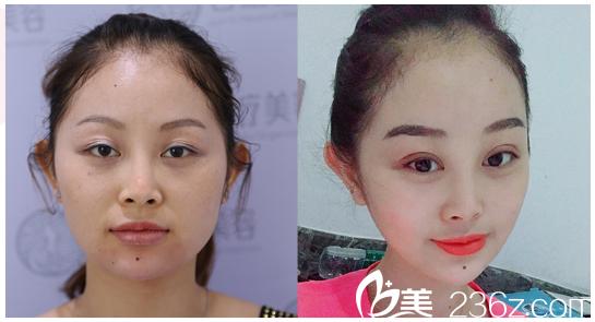 东莞君熠医疗美容整形医院刘伟杰做的双眼皮案例图