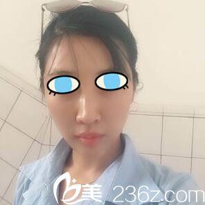 看从阿姨到小姐姐她只在沈阳和颜仙岛医疗美容做了面部埋线提升!