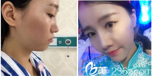 深圳美加美周国伟做的鼻综合隆鼻案例图片