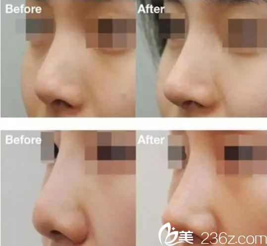 哈尔滨超龙隆鼻怎么样?达拉斯综合隆鼻真人案例,给大家看看真实效果