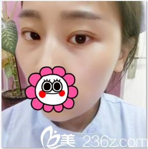 当看自己在北京卓艺整形做切开双眼皮+开眼角第16天样子时很紧张没想到