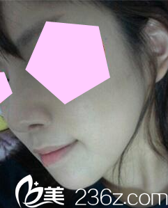 在太原星范做鼻综合隆鼻一个月了,亲们帮我看看恢复效果好看不