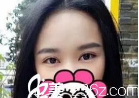 1月13日在西安逆时光医疗美容门诊部续锐医生处做的全切双眼皮手术,没开内眼角左眼角天生没有右眼角长得开