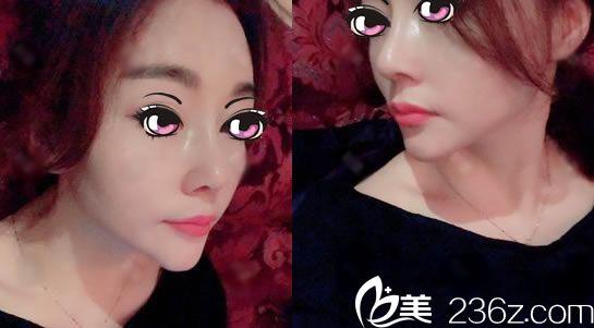看杭州艺之花杨海波院长帮我做的鼻综合隆鼻术后21天恢复效果怎么样