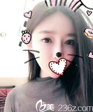 我说自己曾在武汉西婵做过达拉斯隆鼻和双眼皮手术 朋友都不信以为我是纯天然美女