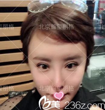给你看下我在北京首玺丽格找尹林取颊脂垫+回填鼻唇沟术后第3月效果