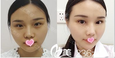 北京三仁双眼皮修复案例