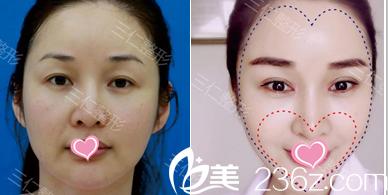北京三仁童颜心型脸案例