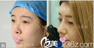 北京三仁鼻综合案例