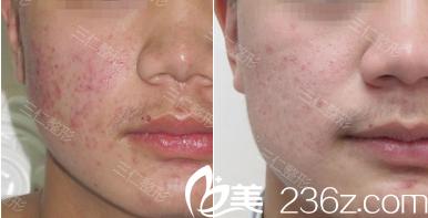 北京三仁皮肤美容案例