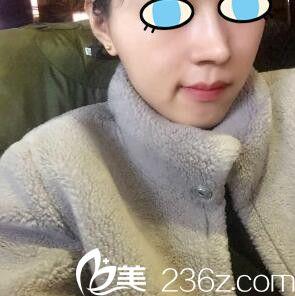 沈阳盛京尚美付强做鼻综合怎么样?看我鼻综合术后1个月效果就知道了