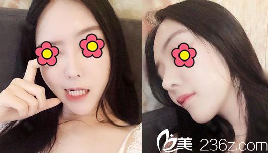 4个月前在杭州瑞丽医院找何涛做肋软骨隆鼻手术前我还面诊了杭州美莱孙明磊