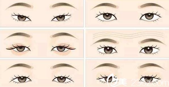 桂林秀美割双眼皮多少钱?韩式双眼皮5800元起就能做