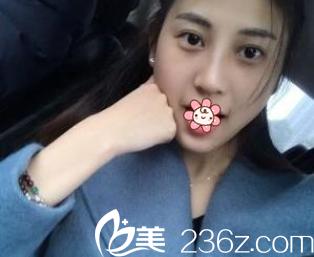 原重庆西南整形医院护士讲她在重庆星宸彭绍宗那儿做鹰钩鼻的感受。