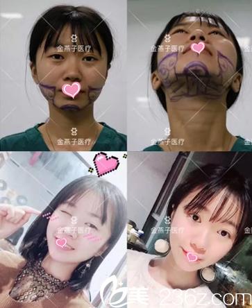 北京金燕子医院怎么样?理性来看马铁安鼻综合+光纤溶脂瘦脸案例并公布近期优惠价格