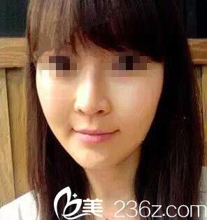 面颊凹陷只能做自体脂肪填充?看一下我在桂林新华脸部注射了两次玻尿酸填充效果很自然